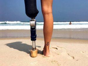 Πανέμορφο μοντέλο δίνει μαθήματα ζωής: Έχασε το πόδι της αλλά ζει μέσα στην περιπέτεια (ΕΙΚΟΝΕΣ)