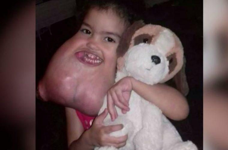 Ιατρικό θαύμα: Αφαίρεσαν σπάνιο όγκο βάρους 2,3 κιλών από το πρόσωπο παιδιού! Δείτε το αποτέλεσμα