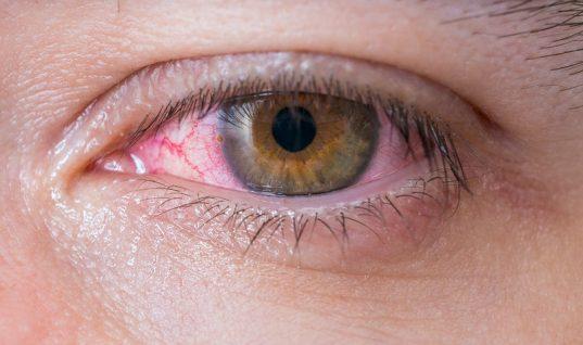 Επιπεφυκίτιδα: Το συχνό λάθος που παρατείνει τα συμπτώματα και τη δυσφορία